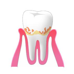 歯周病の場合、治療は歯石取りになります