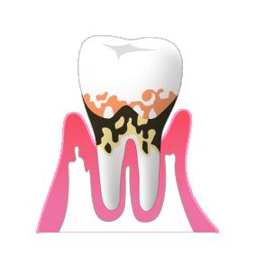 中程度の歯周病は、歯ぐきの治療が必要です